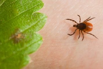 4 Idiotic Ways to Remove a Tick